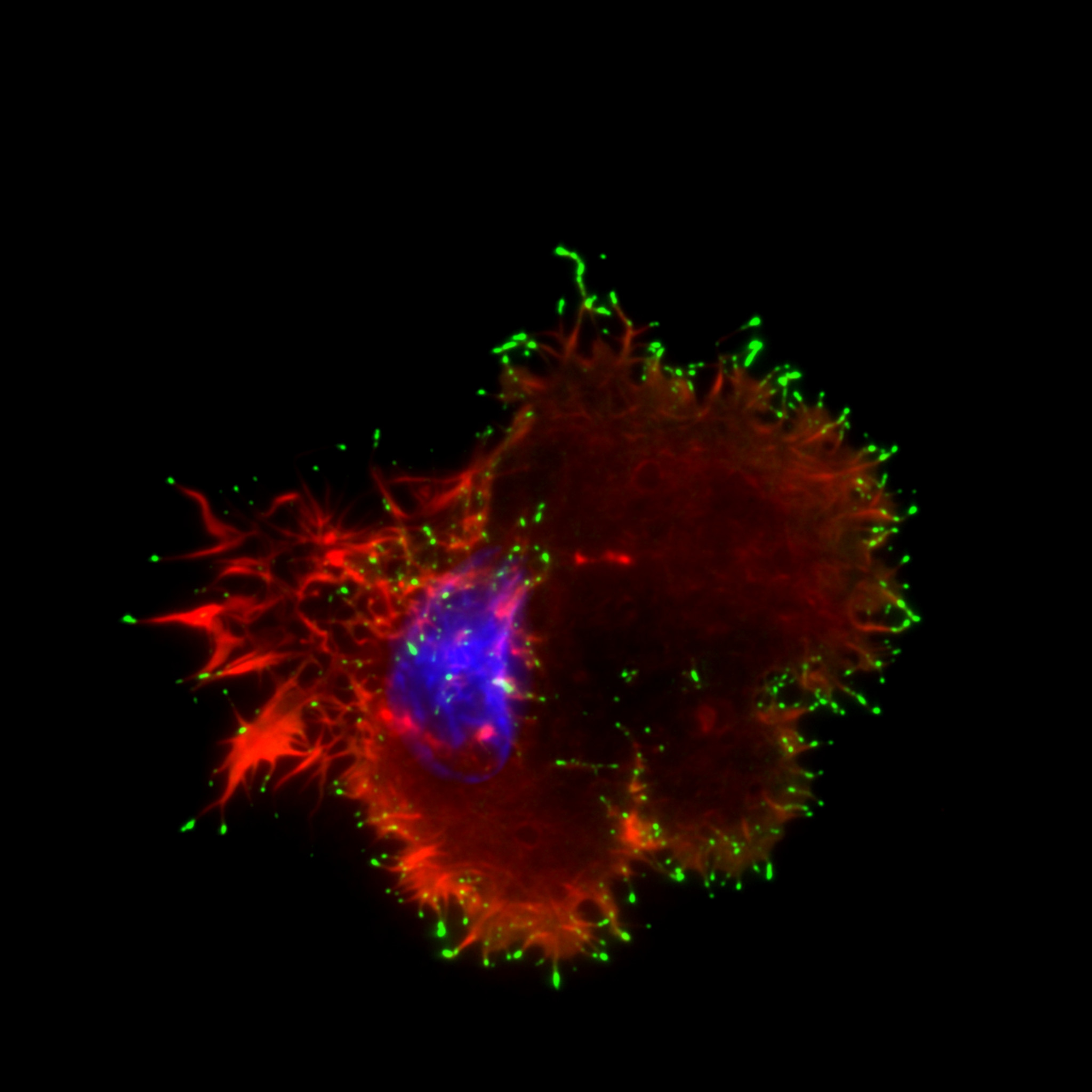 Breast cancer cell labelled for actin (red), Myosin-X (green) and DAPI (to visualise the nucleus, blue).