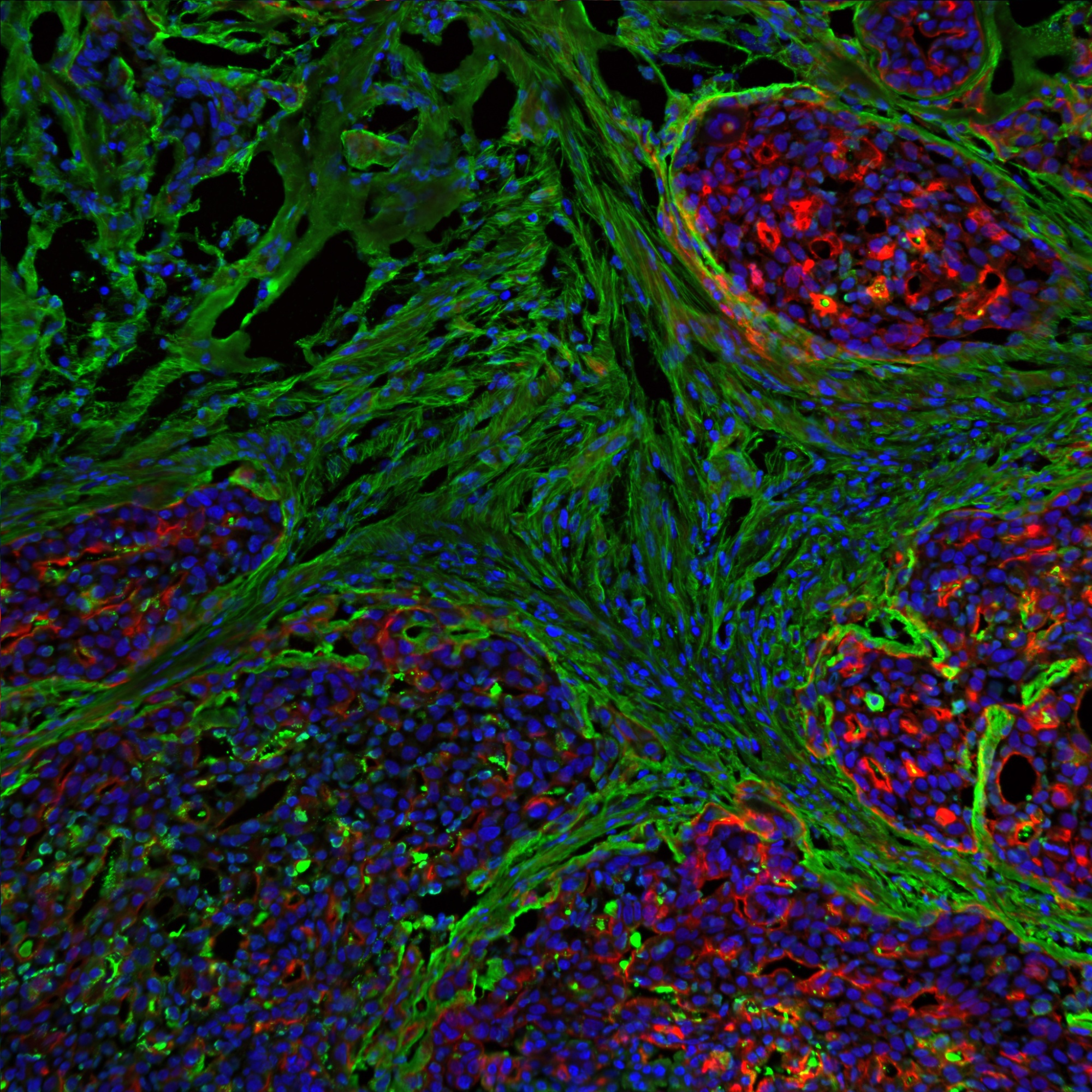 Breast tumour stained for DAPI (blue), actin (red) and fibronectin (green). Credit: Emilia Peuhu and Guillaume Jacquemet.