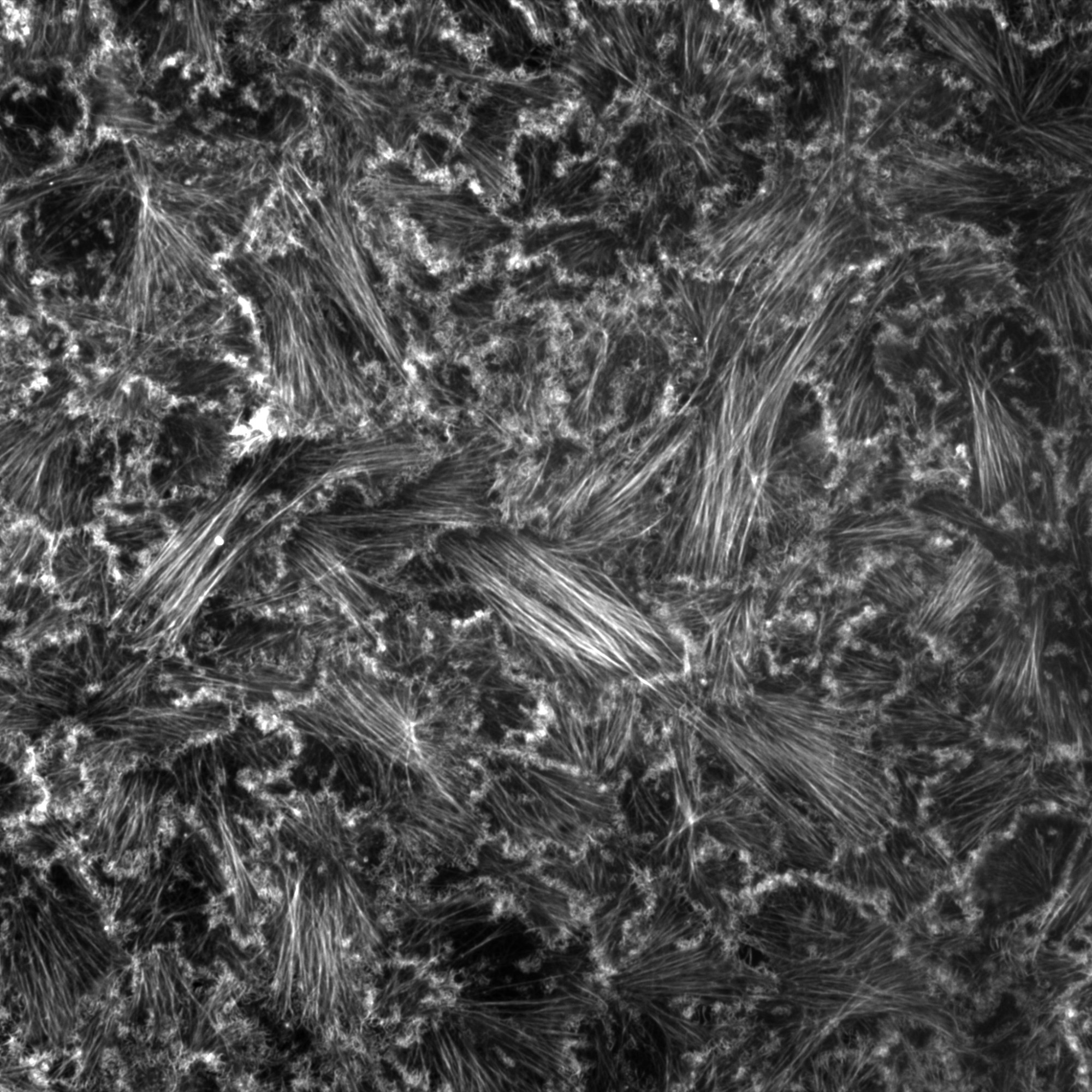 Breast cancer cell monolayer stained for actin.
