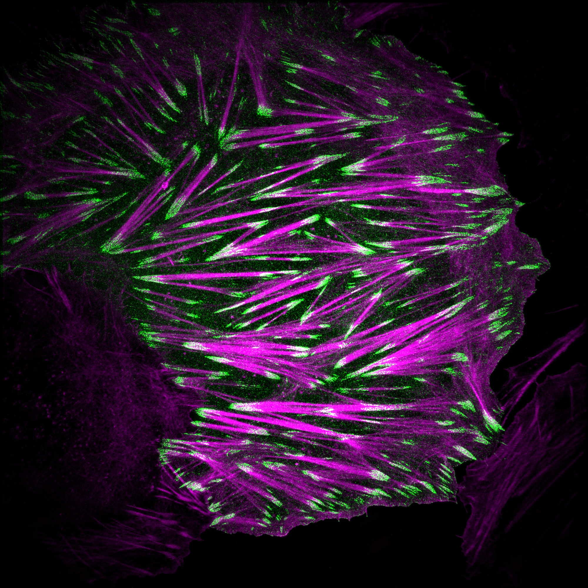 An osteosarcoma cell labelled to visualize the actin cytoskeleton (magenta) and paxillin (green). Image acquired using a structured illumination microscope.