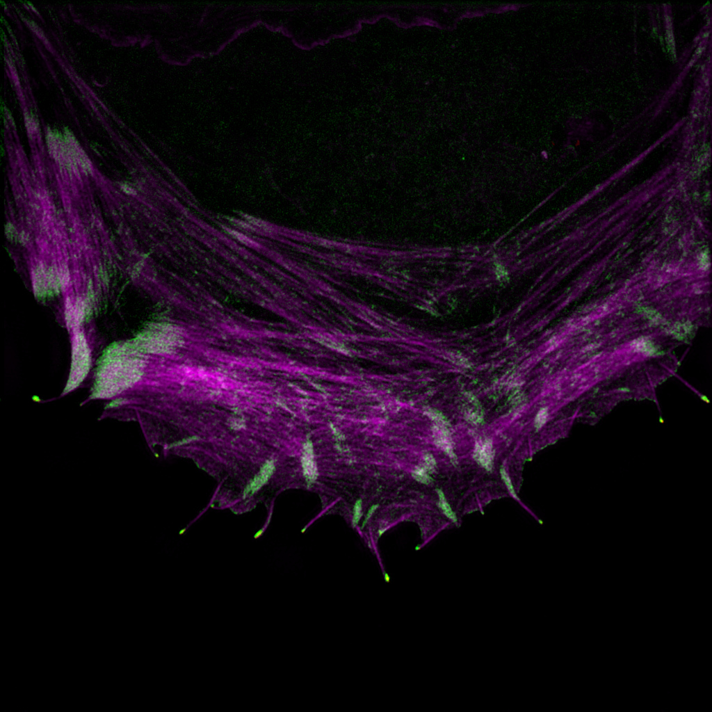 An osteosarcoma cell labelled to visualize the actin cytoskeleton (magenta) and VASP (green).